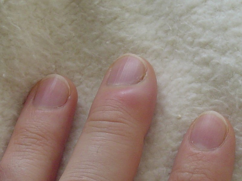 Nail Fungal Infection Treatment in Kathmandu - Migliore Nails